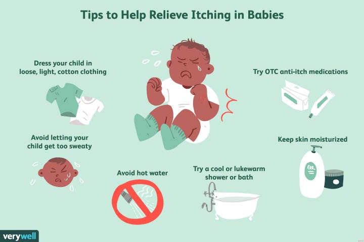 how to relieve itching in babies