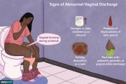 Signs of Abnormal Vaginal Discharge