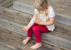 Little girl with eczema on her arm